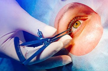 Patient receiving eye care